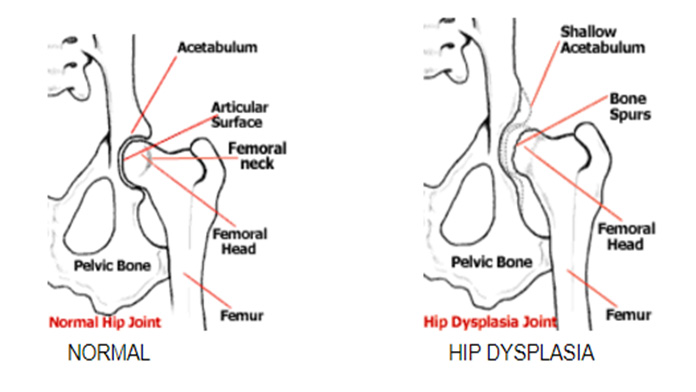 Image of normal and Hip Dysplasia Joint